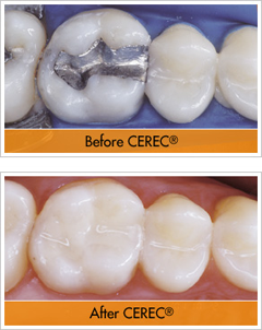 Before and After a CEREC® Restoration