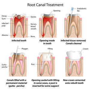 Diagram - Root Canal Treatment
